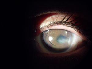keratoconic eye