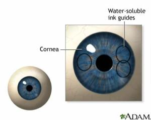 digital eye map