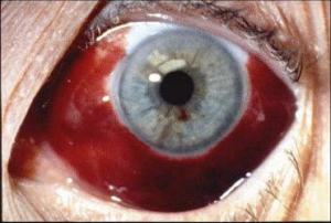 red eye syndrome