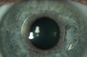 inserted lens