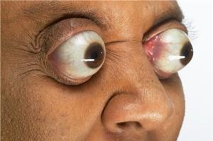 popping eyeballs