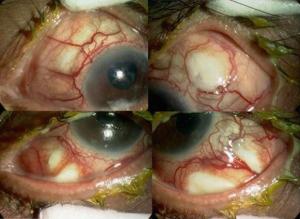 4-way-vitrectomy