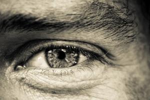 Aged eye