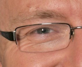 Kevin Rudd's eye