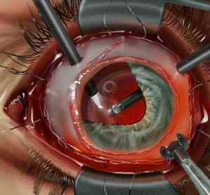 vitrectomy # 2