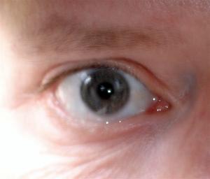 Graham's Unclosable Eye