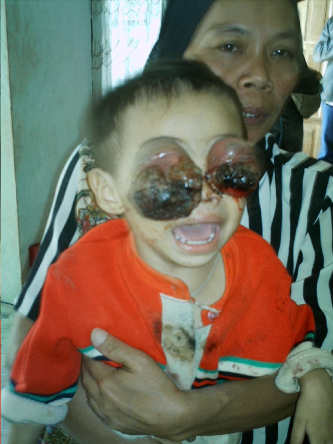 Badly Damaged child's eyes