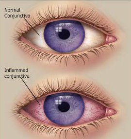 Conjunctivitis Eyes