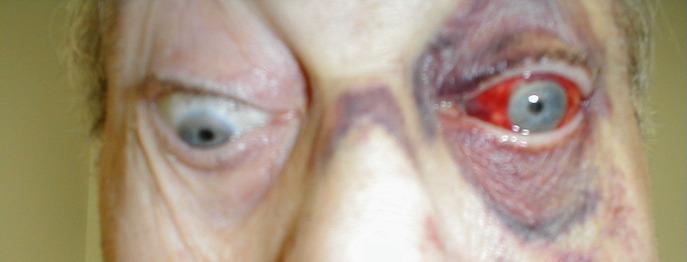 Eye eom Entrapment