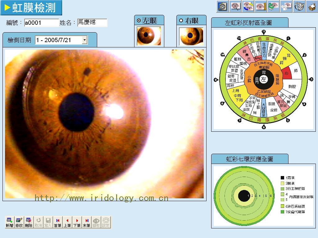 Iridology chart the eye sight iridology tech geenschuldenfo Gallery