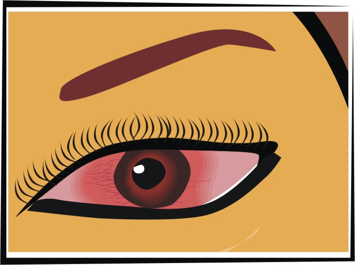 Common Comic Eye Problem