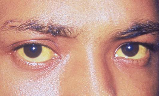 hepatitis eyes