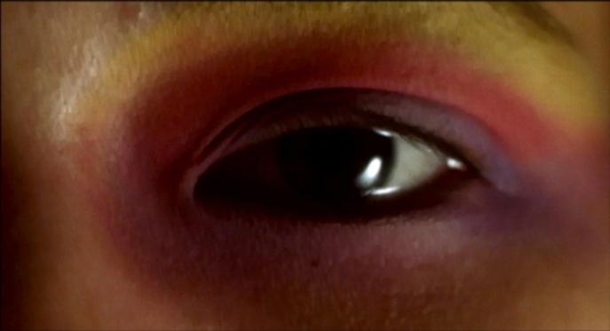 Karsel eye