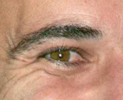 Andre Agassi's eye