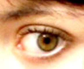 Megan's left eye
