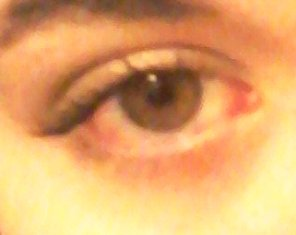 Megan's right eye