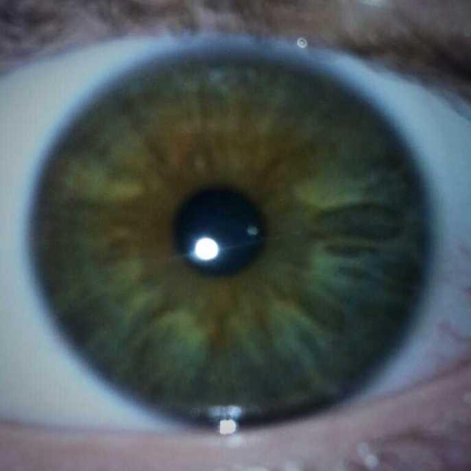 zac's eye